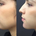 Chin enhancement using dermal fillers a doctor blog Castleknock Cosmetic Clinic Dublin