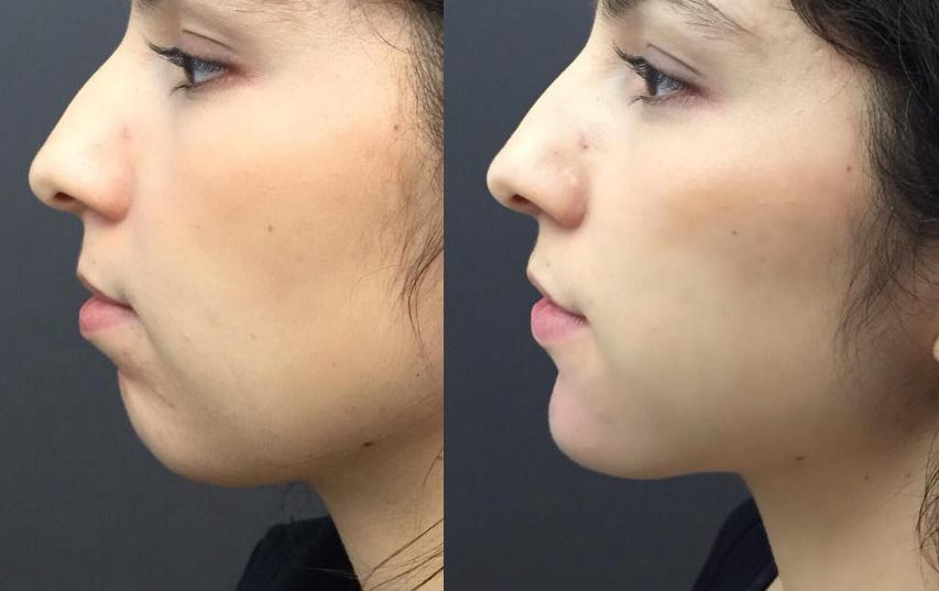 Chin Augmentation with dermal fillers. Chin enhancement at Castleknock cosmetic clinic Dublin
