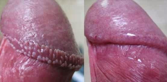 Perly Penile Papules