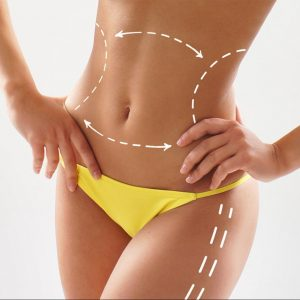 Body Sculpting with vaser liposuction cinched hourglass waist