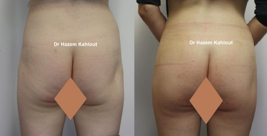 Sculptra Butt Lift is a buttock augmentation procedure