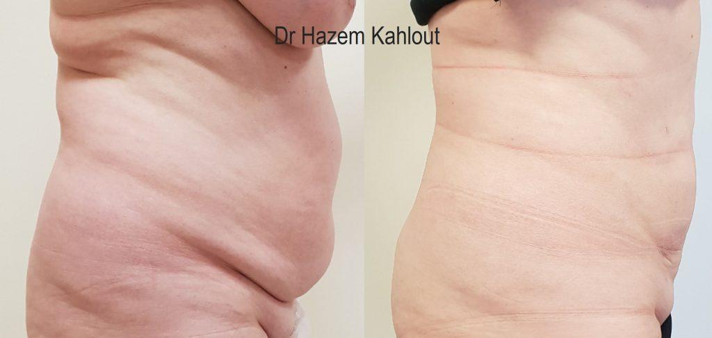 abdominal vaser liposuction