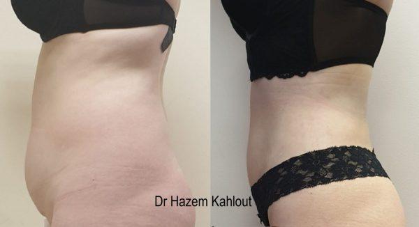 Anterio abdomen vaser liposuction tummy
