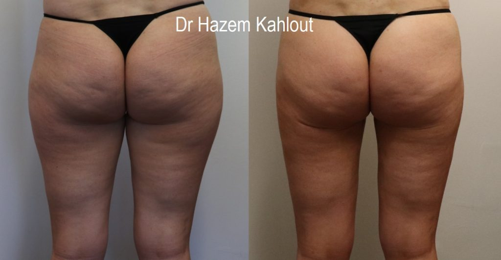 Thighs liposuction with vaser