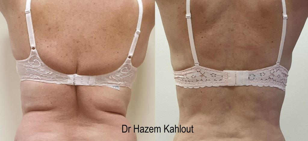 Bra rolls fat bulge liposuction with VASER liposuction for permanent fat removal at Castleknock cosmetic clinic Dublin