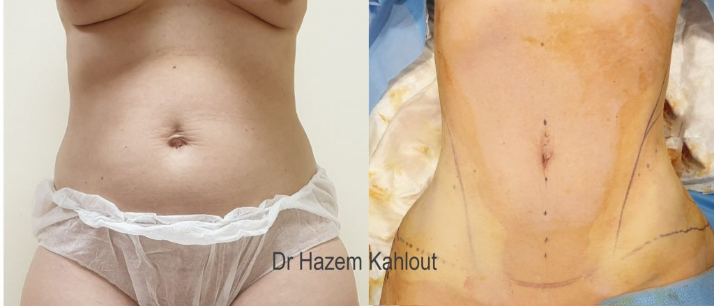 Hourglass liposuction with VASER