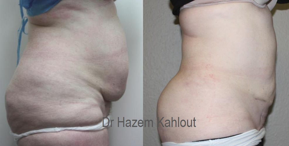 Hourglass waist liposuction Curvy cinched waist silhouette transformation with VASER liposuction