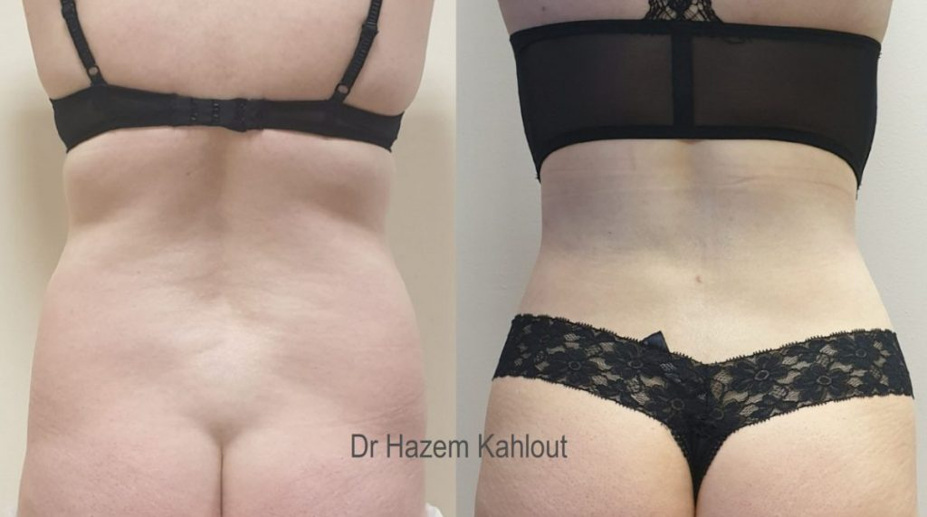 Curvy hourglass cinched waist silhouette with VASER liposuction