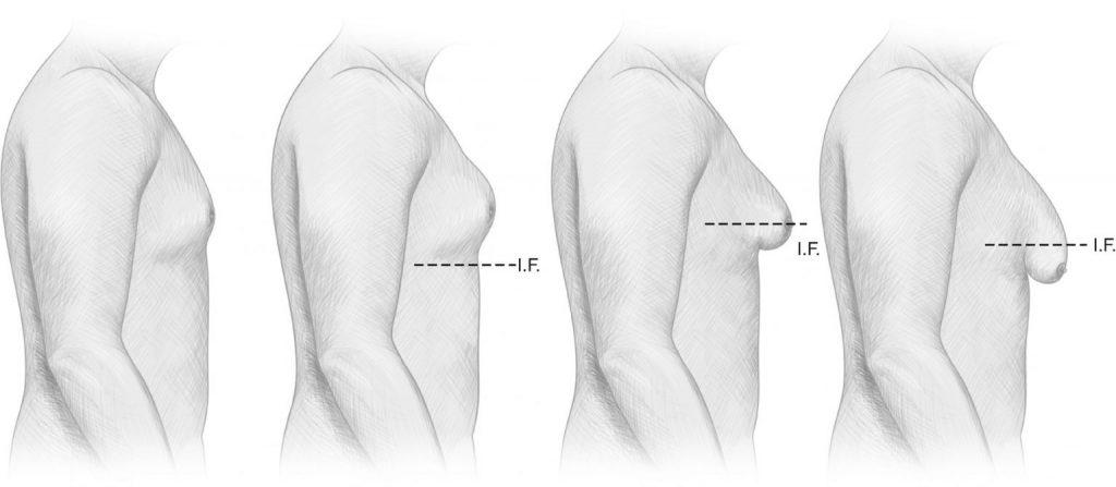 Male chest gynaecomastia reduction vaser