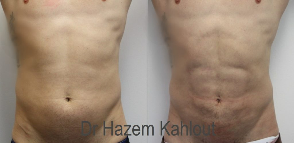 Dr Kahlout example of high definition abdominal aser