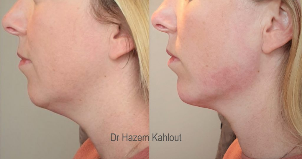 jawline contouring and chin augmentation with dermal fillers at Castleknock cosmetic clinic Dublin
