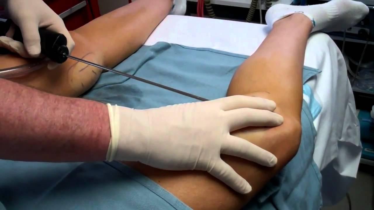 knee liposuction vaser