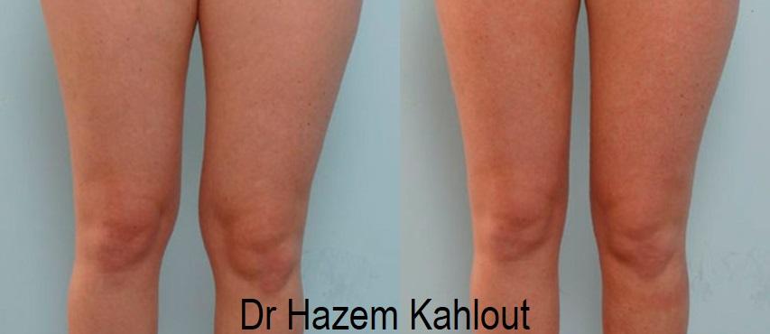 knee fat pad vaser liposuction lipo