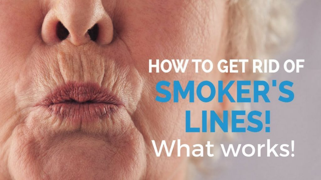 lip lines known as smokers likes treatment options at Castleknock cosmetic clinic