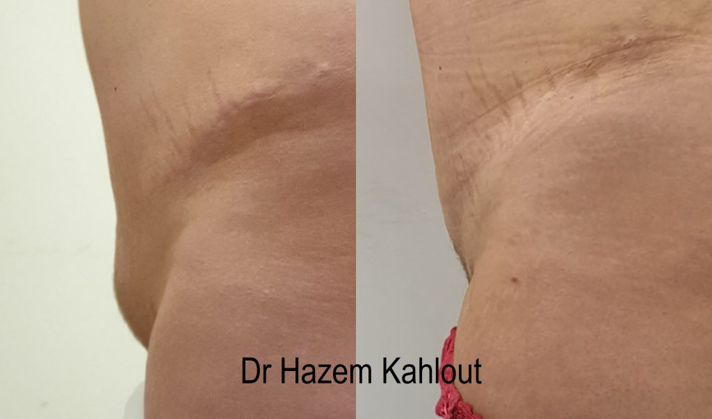 Mons pubis liposuction with vaser
