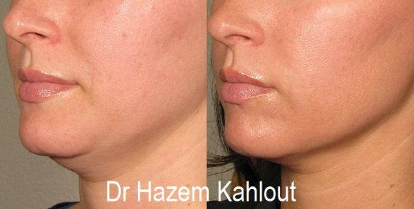 Neck and chin liposuction vaser