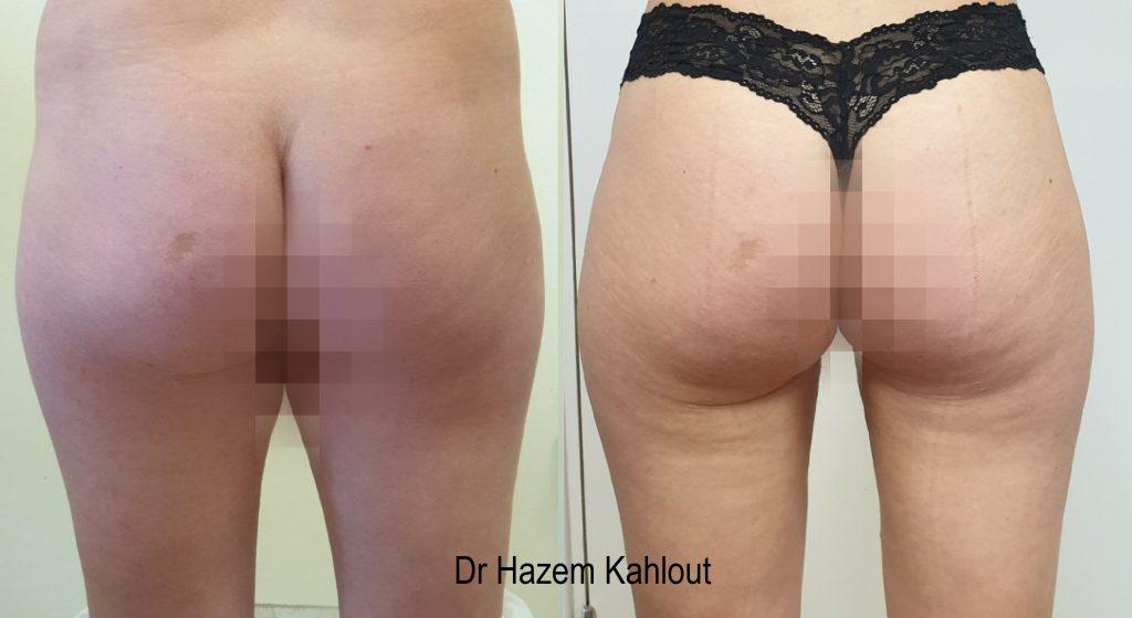 Inner thighs liposuction vaser