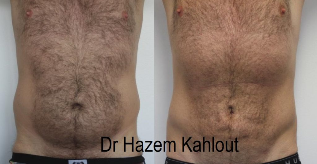 Male flanks and love handles treated with vaser liposuction at Castleknock Cosmetic Clinic