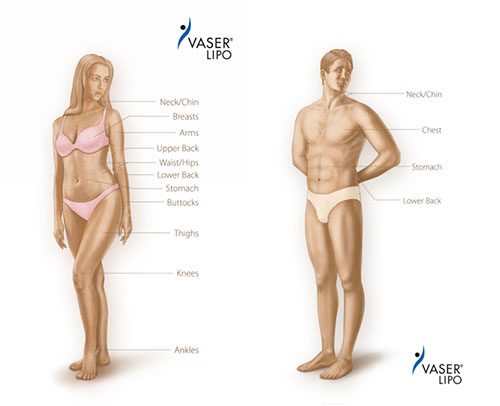 Liposuction with vaser areas