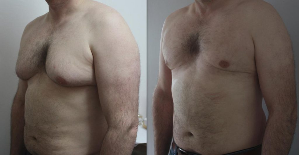 Man boobs enlargement of male breast gynaecomastia liposuction with vaser