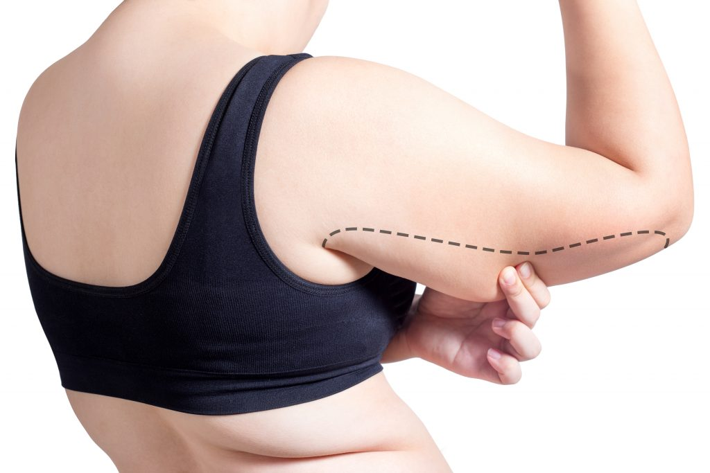 Liposuction to remove fat from of the arms using vaser to combat bat wings