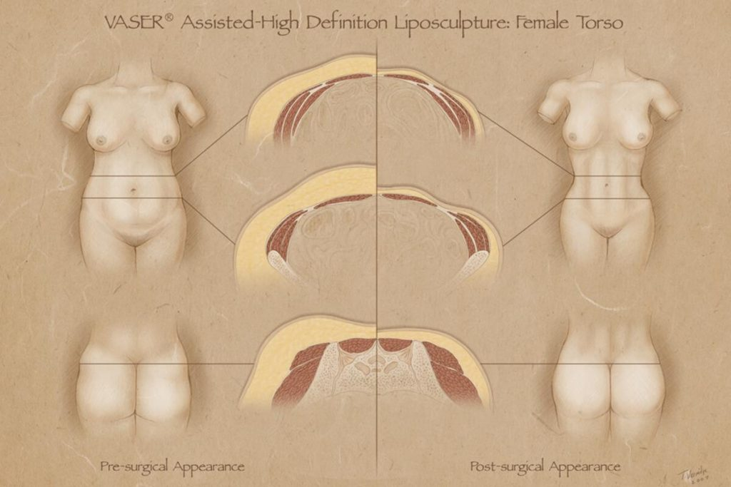 Mid-Definition liposculpting liposuction with VASER